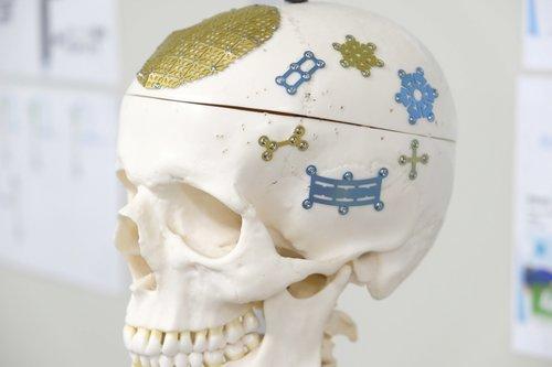 チタン製医療機器